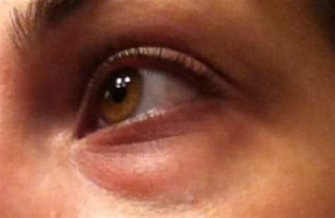 Poches sous les yeux